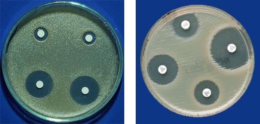 diffusion disk Agar