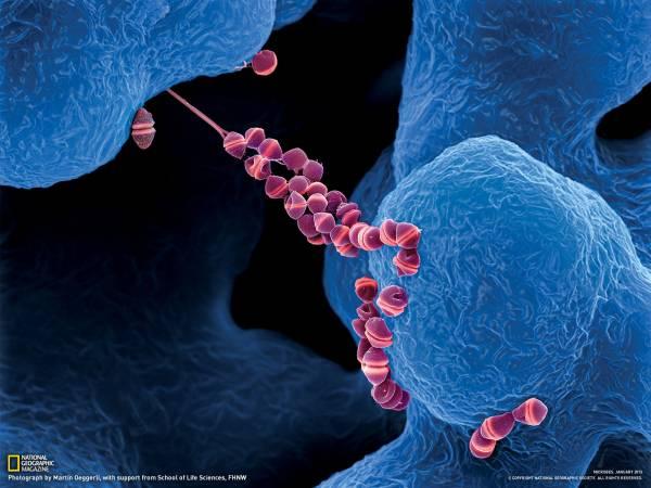 عفونت استرپتوکوک