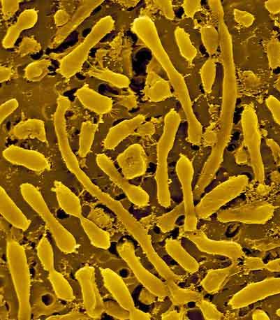 آرکی باکتری ها